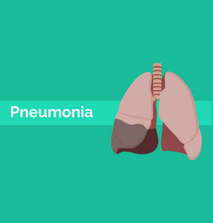 lung with pneumonia sick or illness with flat vector image