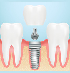 Realistic healthy teeth and dental implant vector