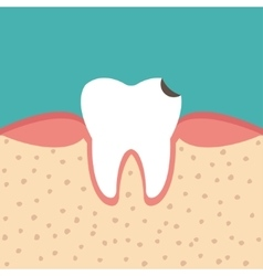 Tooth sectional view tooth decay vector