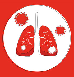 Infected lungs with bacterium vector