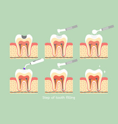 Step of caries to tooth amalgam filling vector