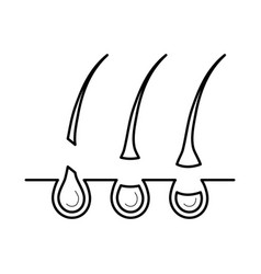 hair removed from the skin surface without bulb vector image vector image