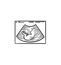Baby silhouette on ultrasound hand drawn outline vector