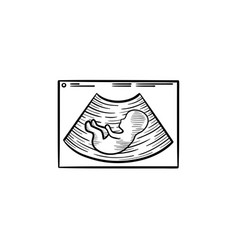 fetal ultrasound hand drawn outline doodle icon vector image