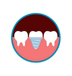 dental implant in mouth with replacement vector image vector image