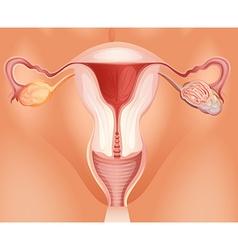Ovarian tumor in woman vector
