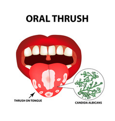 Oral thrush candidiasis on the tongue fungus in vector