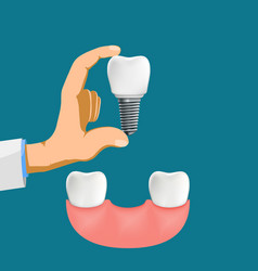 Dentist holds a dental implant in his hand vector