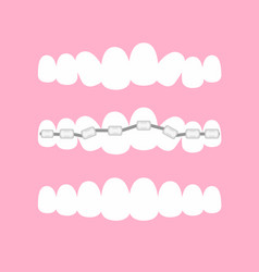 Stages orthodontic vector