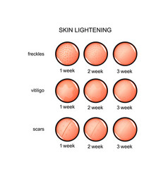 Lightening skin freckles vitiligo scars vector