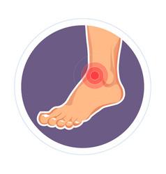 injury ankle trauma leg dislocation medicine vector image