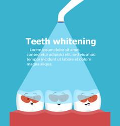 Professional teeth whitening vector