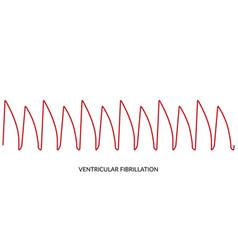 Ecg heartbeat line electrocardiogram ventricular vector