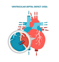 Ventricular septal defect vsd with heart blood vector