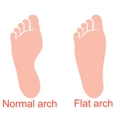 human anatomy flat and normal arch vector image vector image