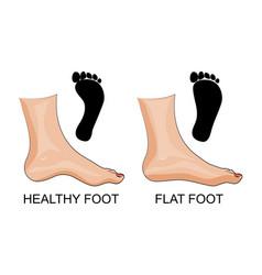 feet healthy and flat feet footprint vector image vector image