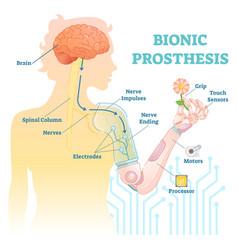 bionic prosthesis - robotic female hand vector image