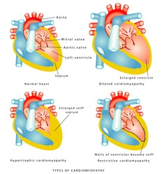 Diseases of the Heart Muscle vector image