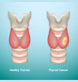 healthy thyroid and thyroid cancer eps10 vector image vector image