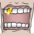 gold tooth vector image