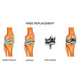 knee joint endoprosthesis vector image