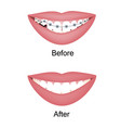 crooked woman teeth before and after the vector image vector image
