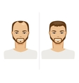 Hair Loss and healthy hair vector image