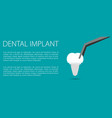 dental implant flat vector image vector image