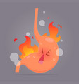 from acid reflux or heartburn cartoon vector image vector image