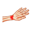 pain hand vector image
