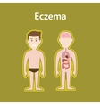 eczema sick with human body full vector image vector image