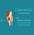 realistic treatment of knee pain vector image
