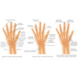 Hand fractures vector image vector image
