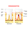 Periodontitis vector image vector image