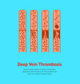 cartoon deep vein thrombosis card poster vector image vector image