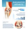 infographic treatment method rheumatoid arthritis vector image