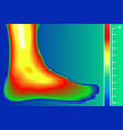 human leg infrared thermograph with temperature vector image vector image