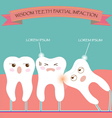 Wisdom Teeth Partial Eruption Impaction vector image vector image