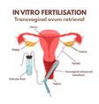 in vitro fertilisation vector image vector image