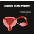Development of the embryo in the ampullar vector image vector image