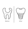 icons of tooth dental implant vector image vector image