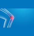 3d knee painful x-ray joint pains vector image