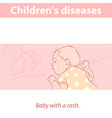 little bawith rash on face and body vector image vector image