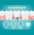 dental implant structure realistic tooth vector image vector image