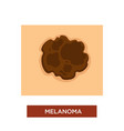 melanoma or skin cancer disease dangerous mole vector image vector image