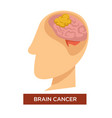 oncology disease brain cancer and chemotherapy vector image vector image