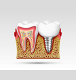 3d teeth in a cut with nerve endings vector image