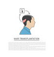 hair transplantation vector image