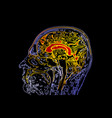 topographic map mri of the human brain vector image vector image