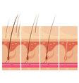 Hair Loss Skin Concept vector image vector image